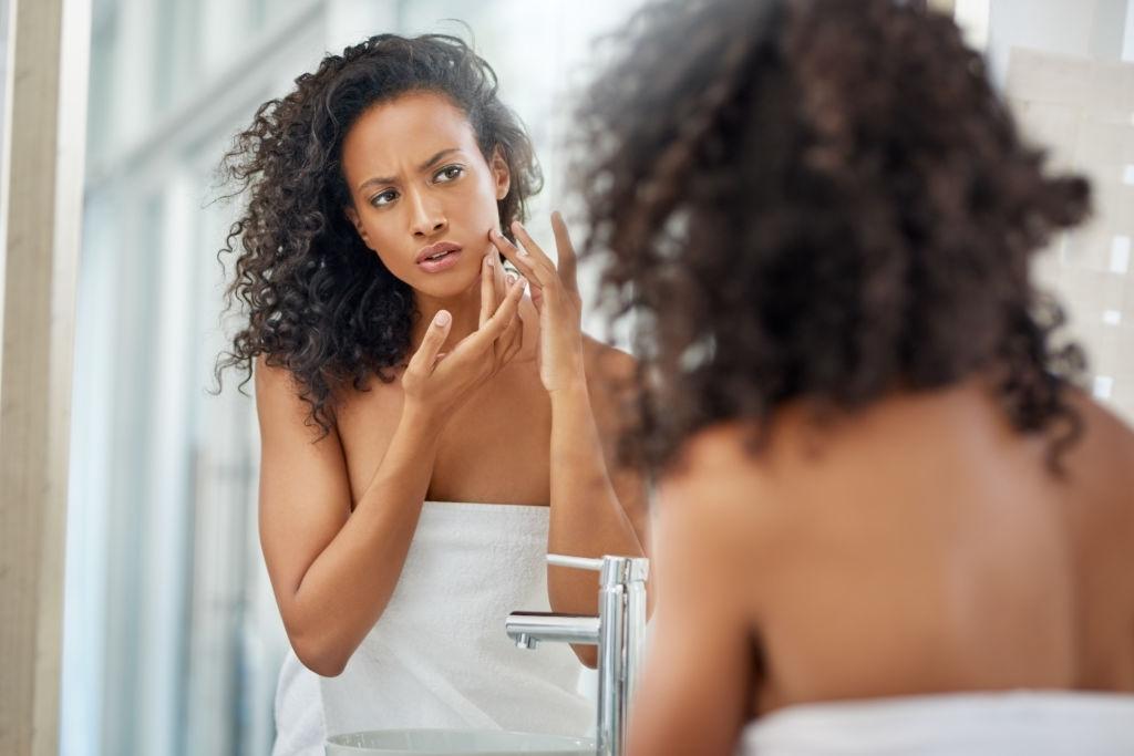 Why Skin Acne Problem