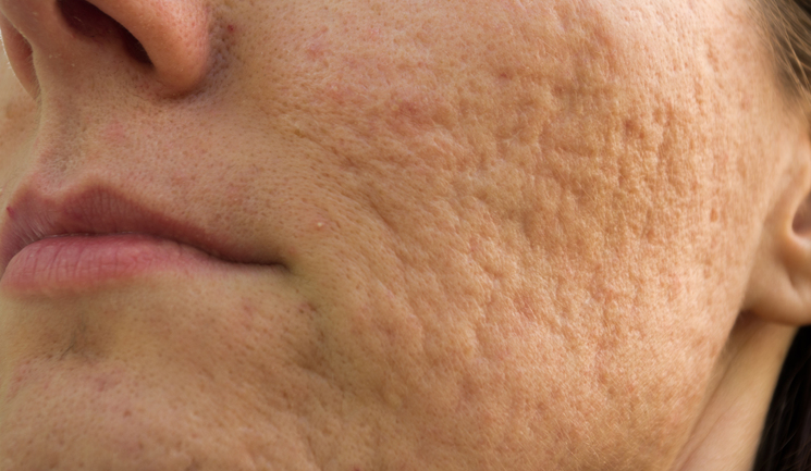 Atrophic scars
