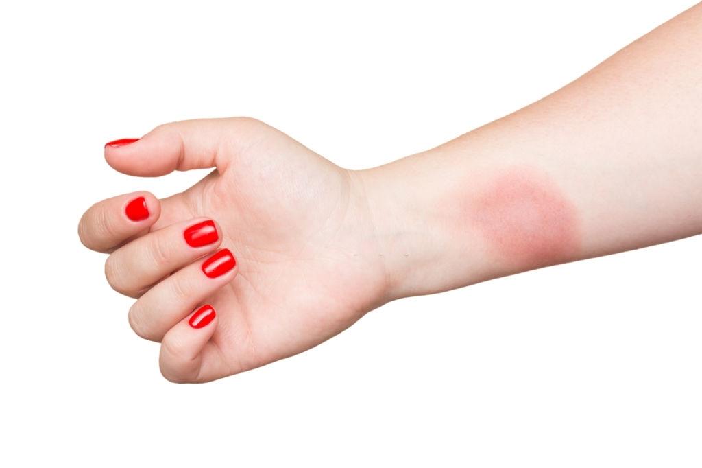 burns scar remove
