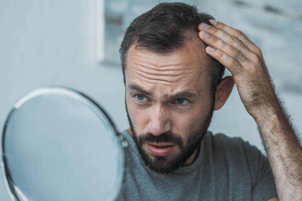 oily scalp treatment for men