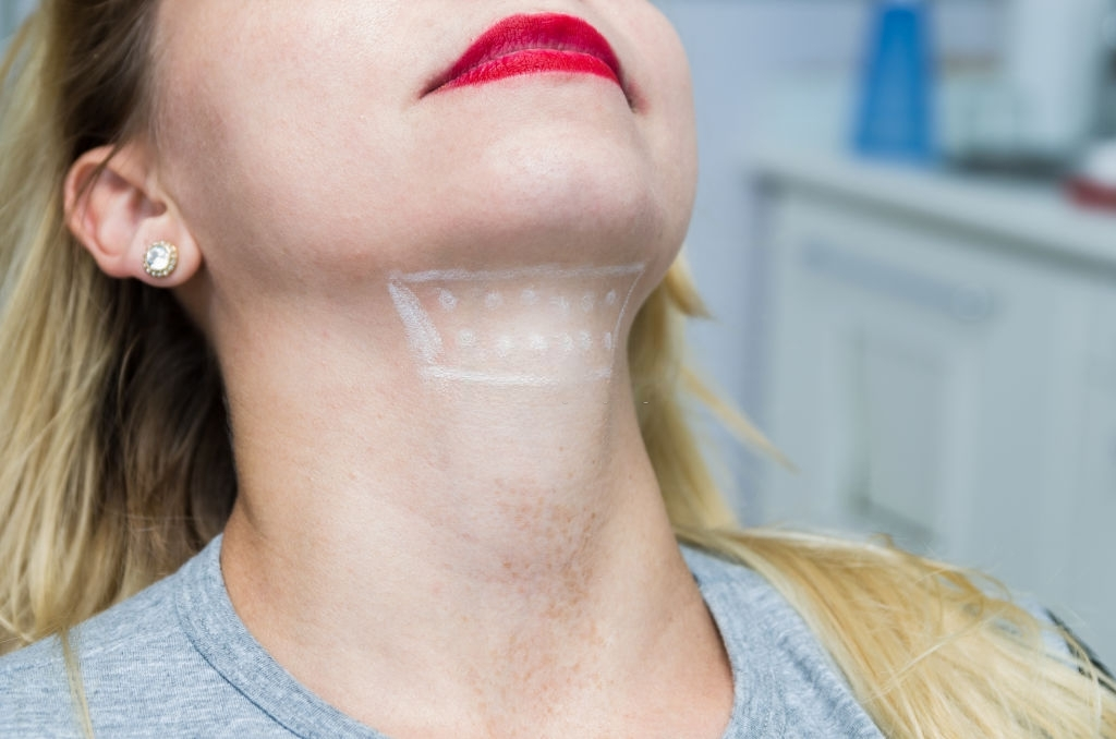 How to Get Rid of a Double Chin & Jowls Fast